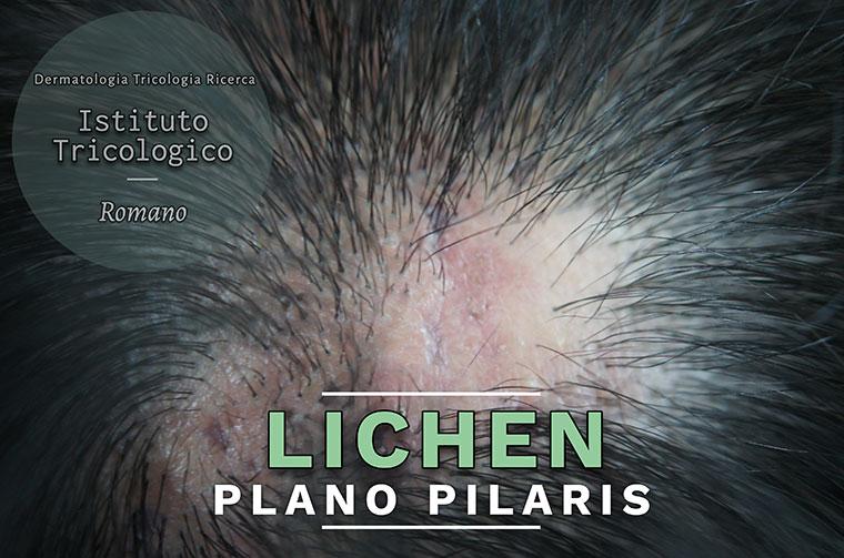 lichen-plano-pilaris
